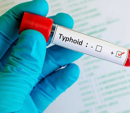 Typhoid Vaccination in Sindh
