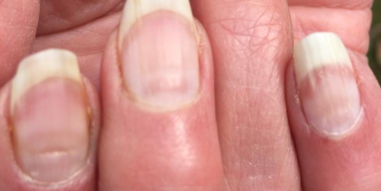 5 Things You Need To Know About 'COVID Nails'