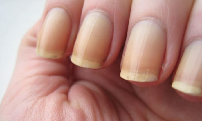 5 Fool-Proof Ways To Get Rid Of Yellow Nails At Home