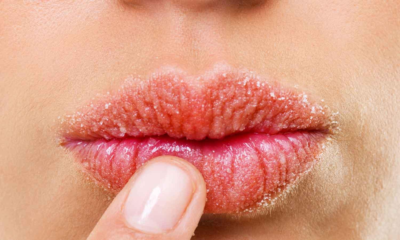 Dry-lips