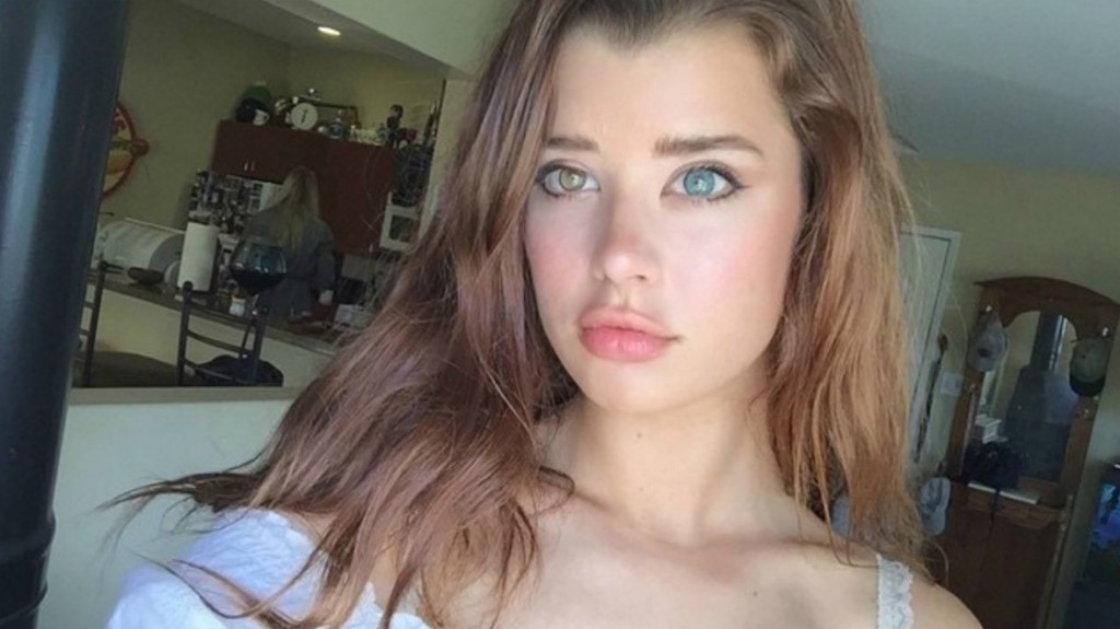 SSarah McDaniel: The US Model With Beautiful Genetic Mutation