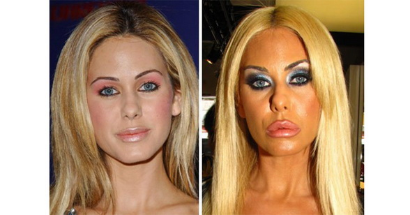 cosmetic surgery 2_resize